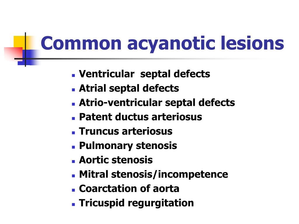 Common acyanotic lesions