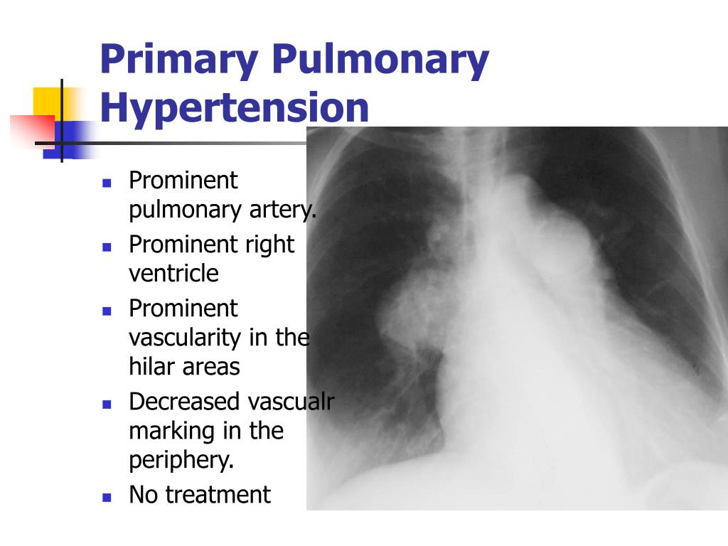 Prominent pulmonary artery.