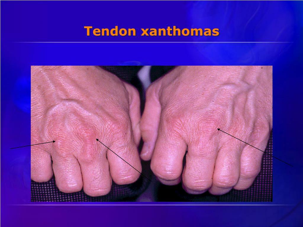 Tendon xanthomas