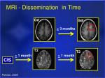 mri dissemination in time