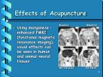 effects of acupuncture