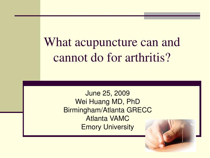 what acupuncture can and cannot do for arthritis n.