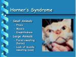 horner s syndrome