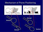 mechanism of prone positioning