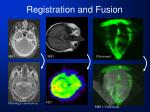 registration and fusion