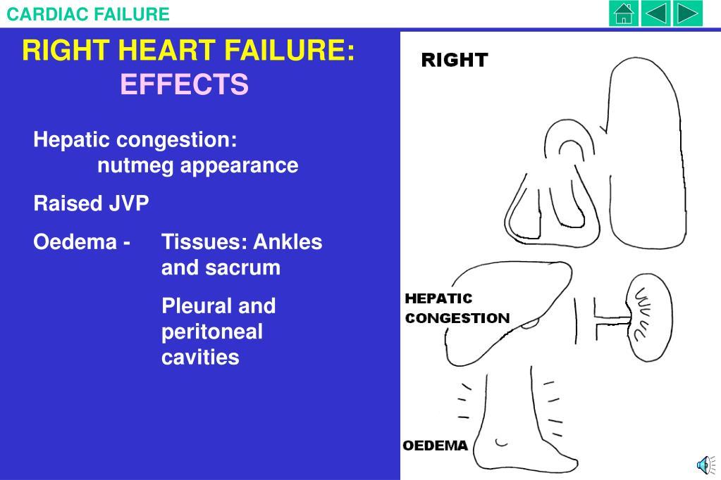 RIGHT HEART FAILURE: