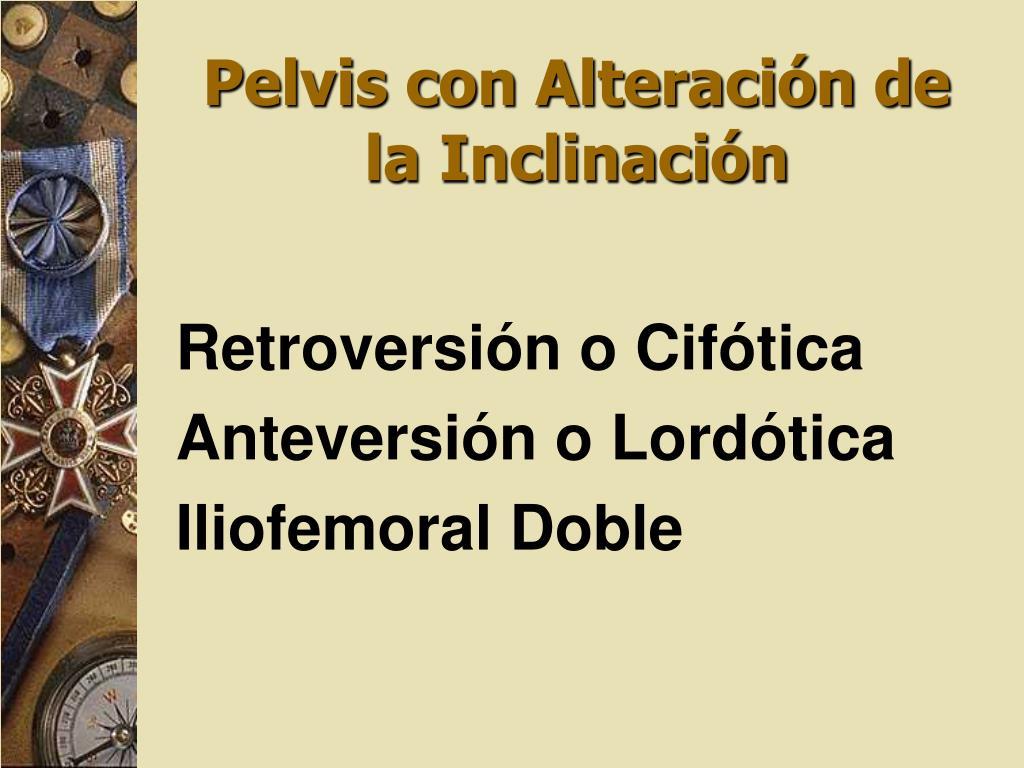 Pelvis con Alteración de la Inclinación