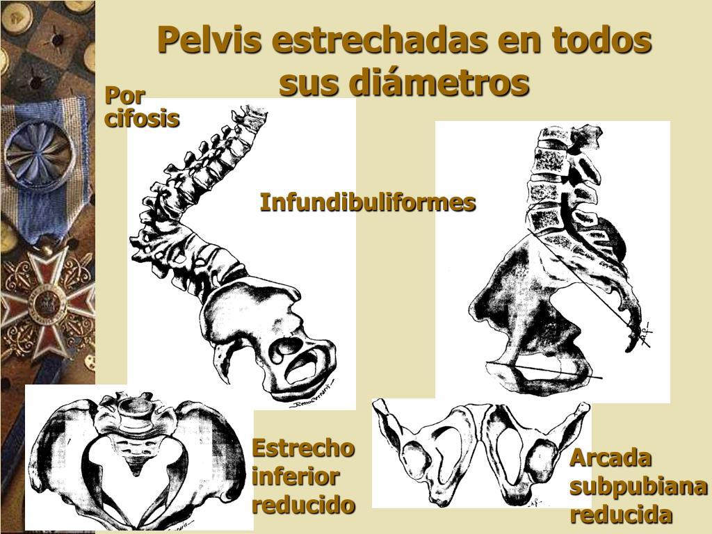 Infundibuliformes