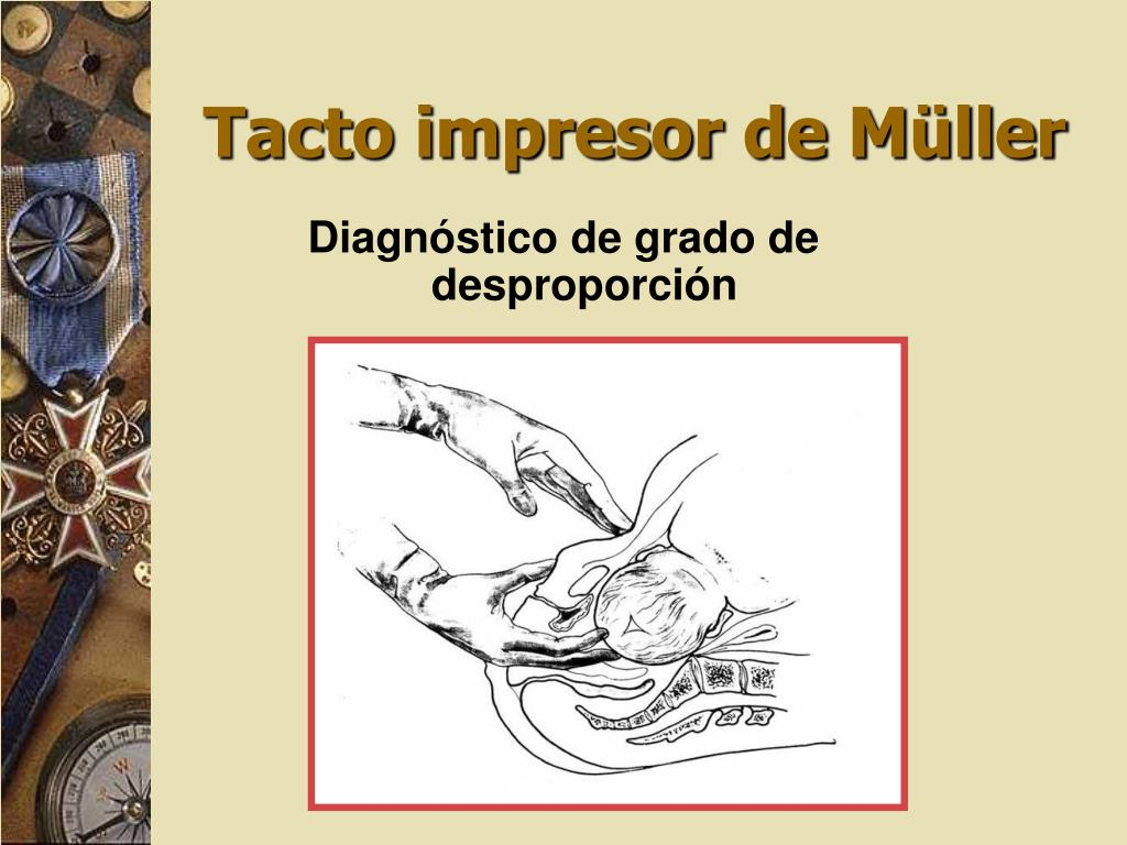 Tacto impresor de Müller