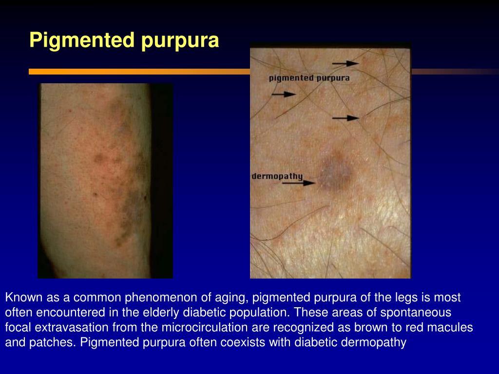 Ppt - Diabetic Dermopathy Powerpoint Presentation