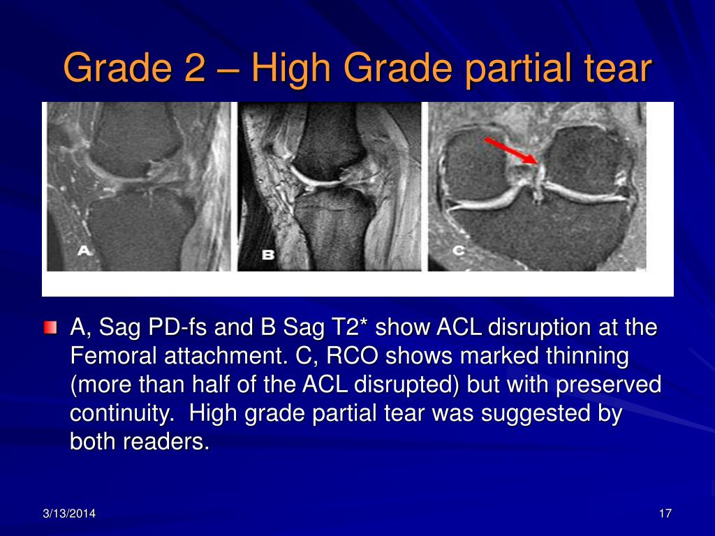 Ppt An Evaluation Of The Use Of Reformatted Coronal