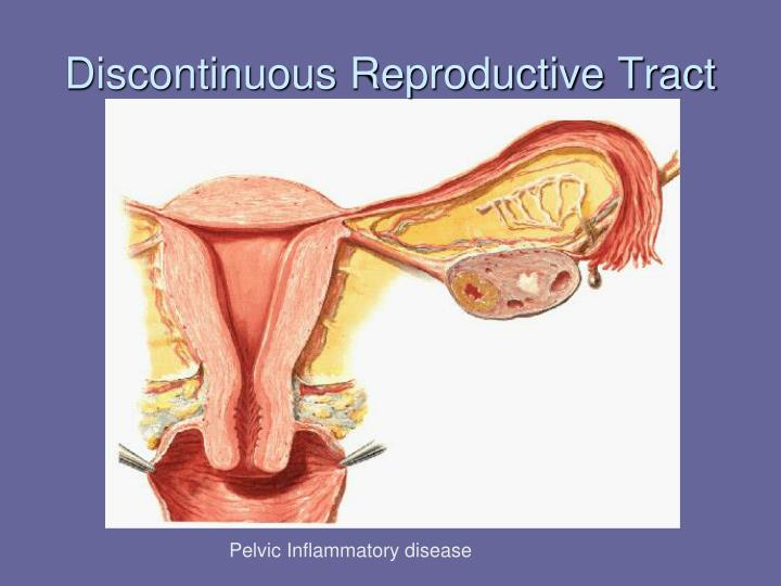 Discontinuous Reproductive Tract