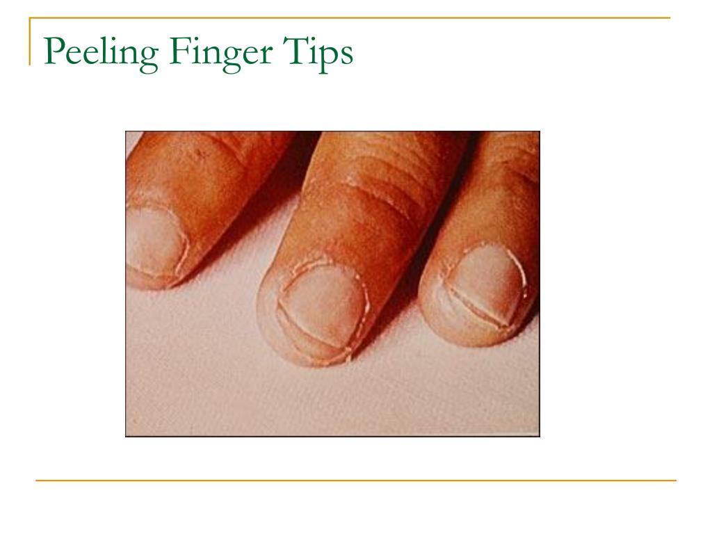 Peeling Finger Tips