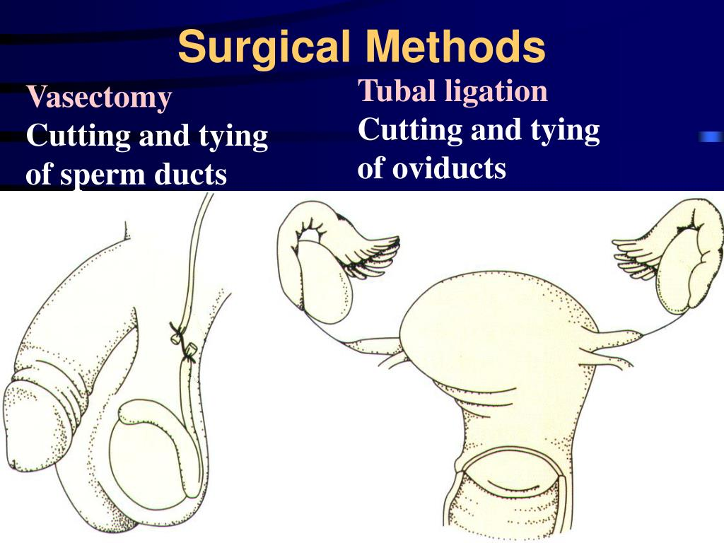 Surgical Methods