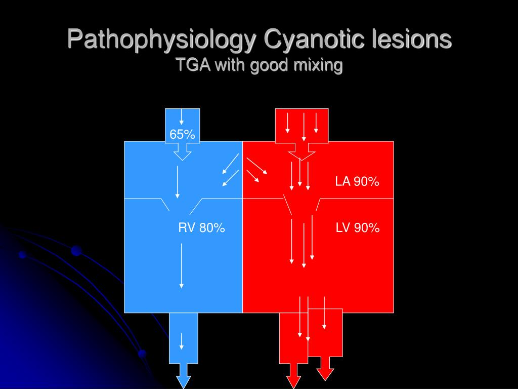 Pathophysiology Cyanotic lesions