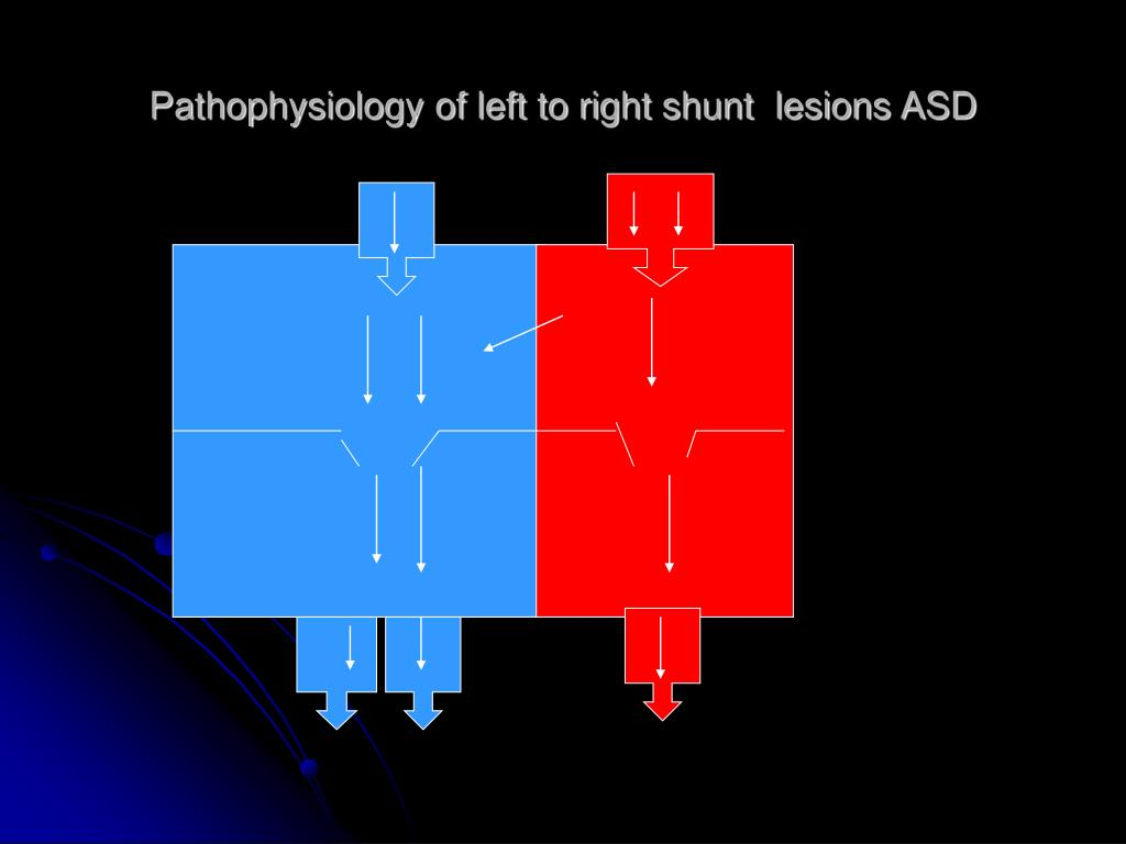 Pathophysiology of left to right shunt  lesions ASD