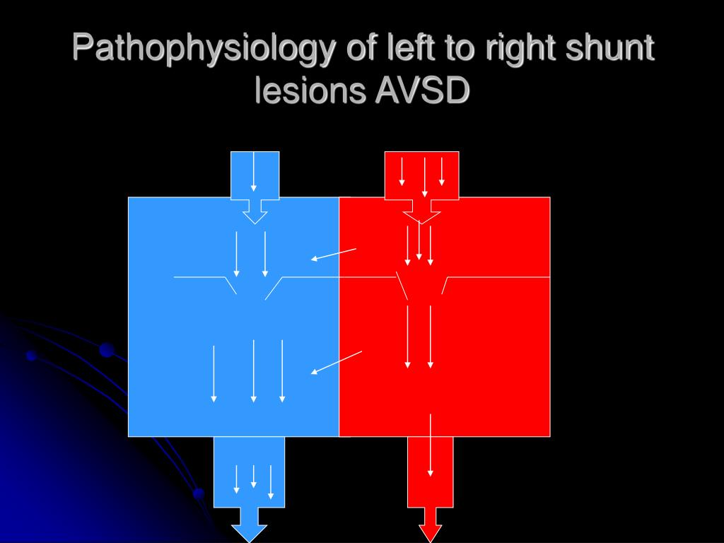 Pathophysiology of left to right shunt  lesions AVSD