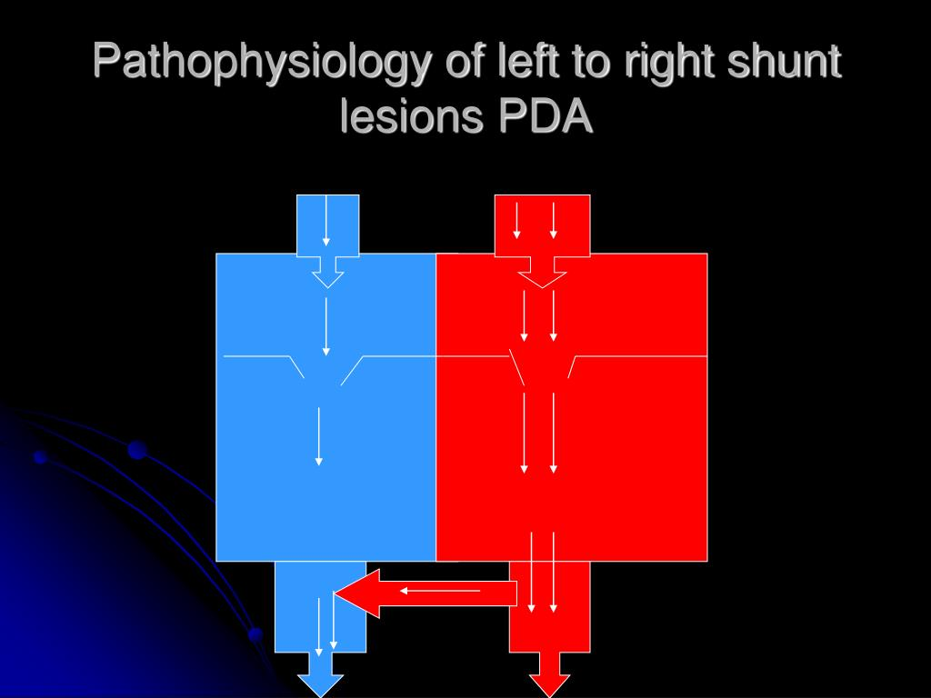 Pathophysiology of left to right shunt  lesions PDA