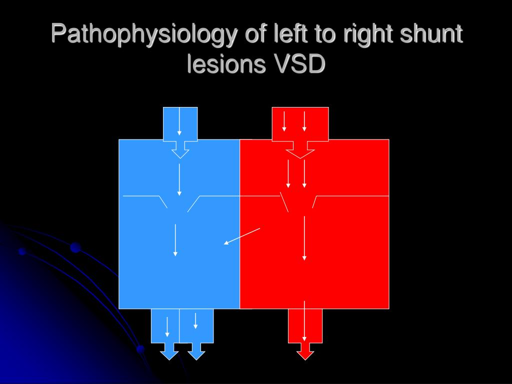 Pathophysiology of left to right shunt  lesions VSD