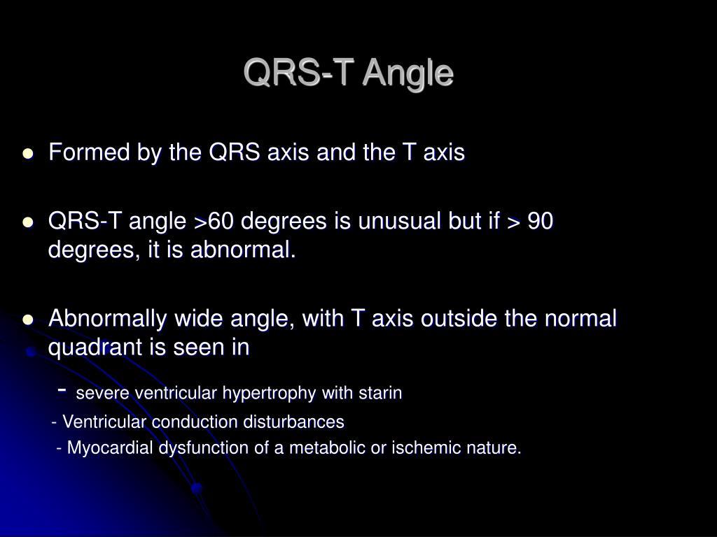 QRS-T Angle