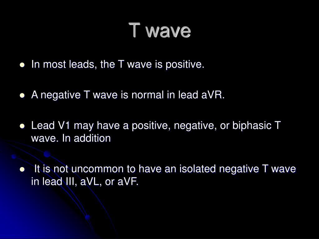 T wave