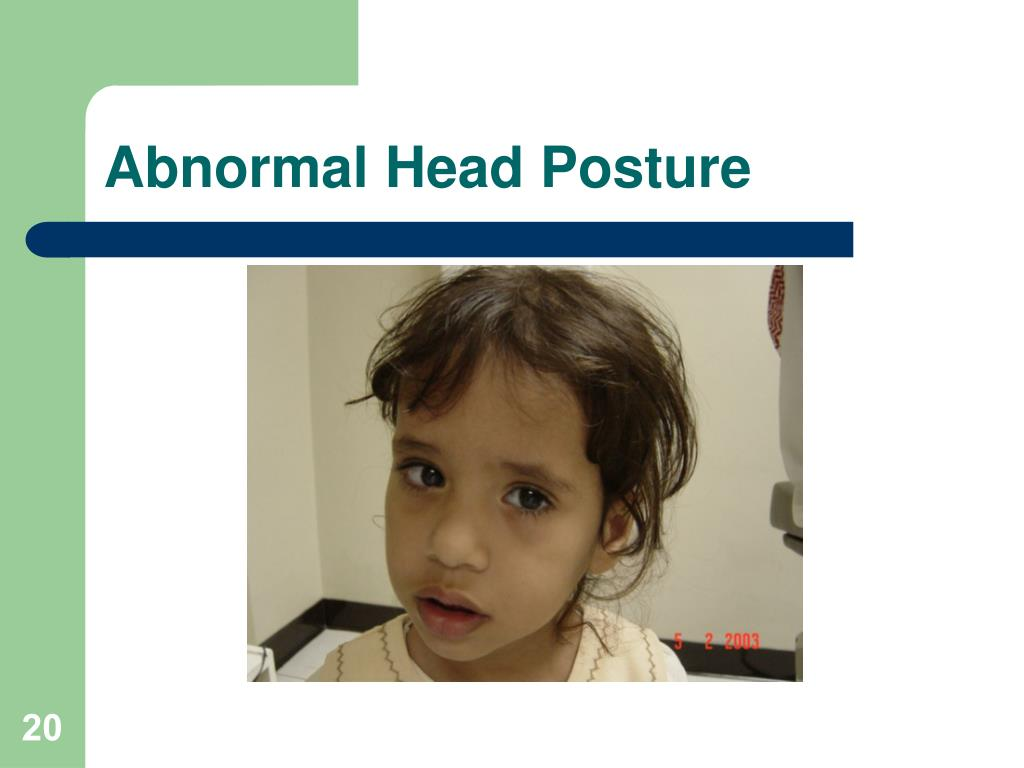 Abnormal Head Posture