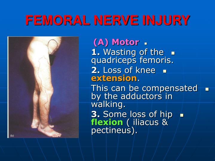 femoral nerve injury n.