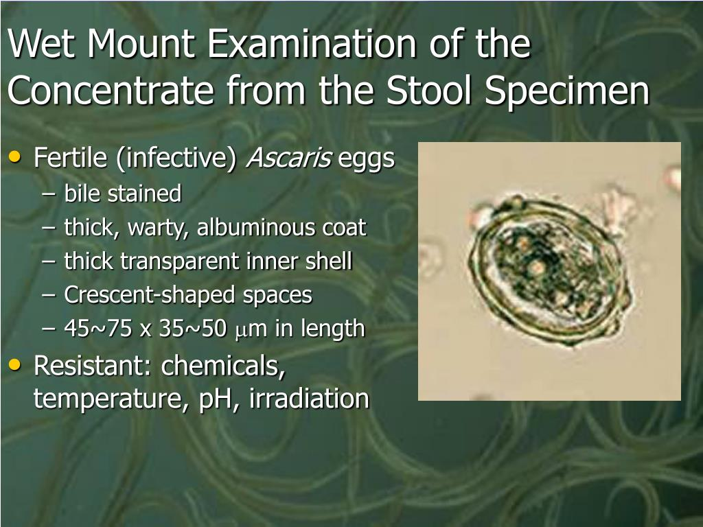 Wet Mount Examination of the Concentrate from the Stool Specimen