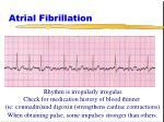 atrial fibrillation50