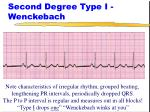 second degree type i wenckebach24