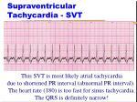 supraventricular tachycardia svt