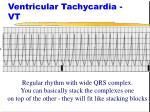 ventricular tachycardia vt