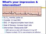 what s your impression intervention