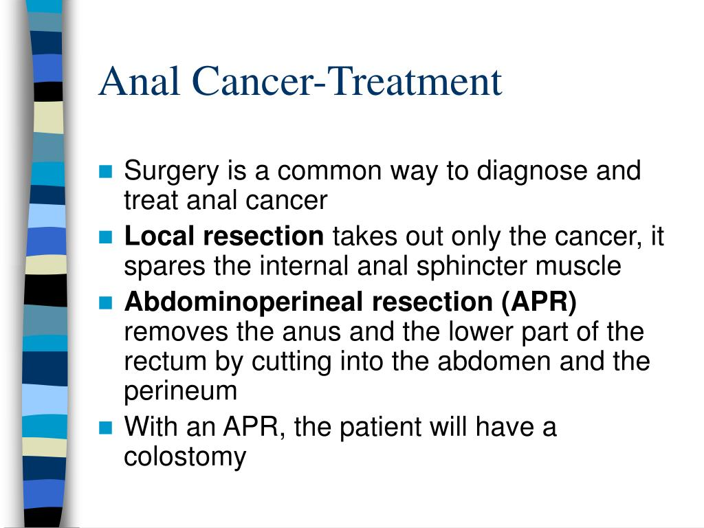 Anal Cancer-Treatment