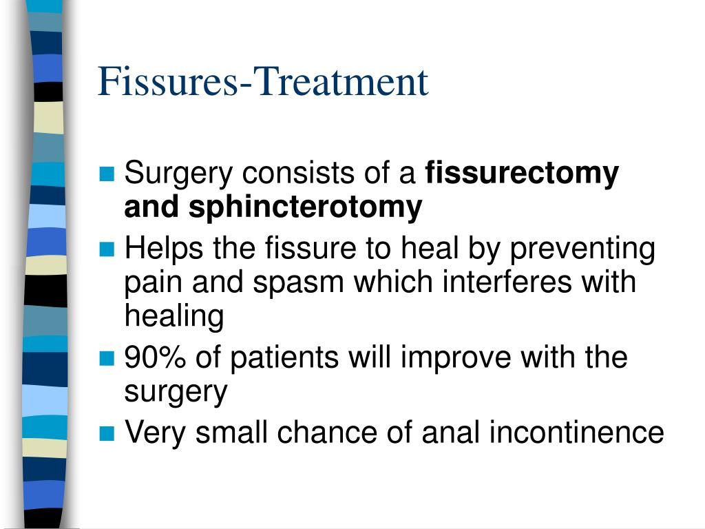 Fissures-Treatment