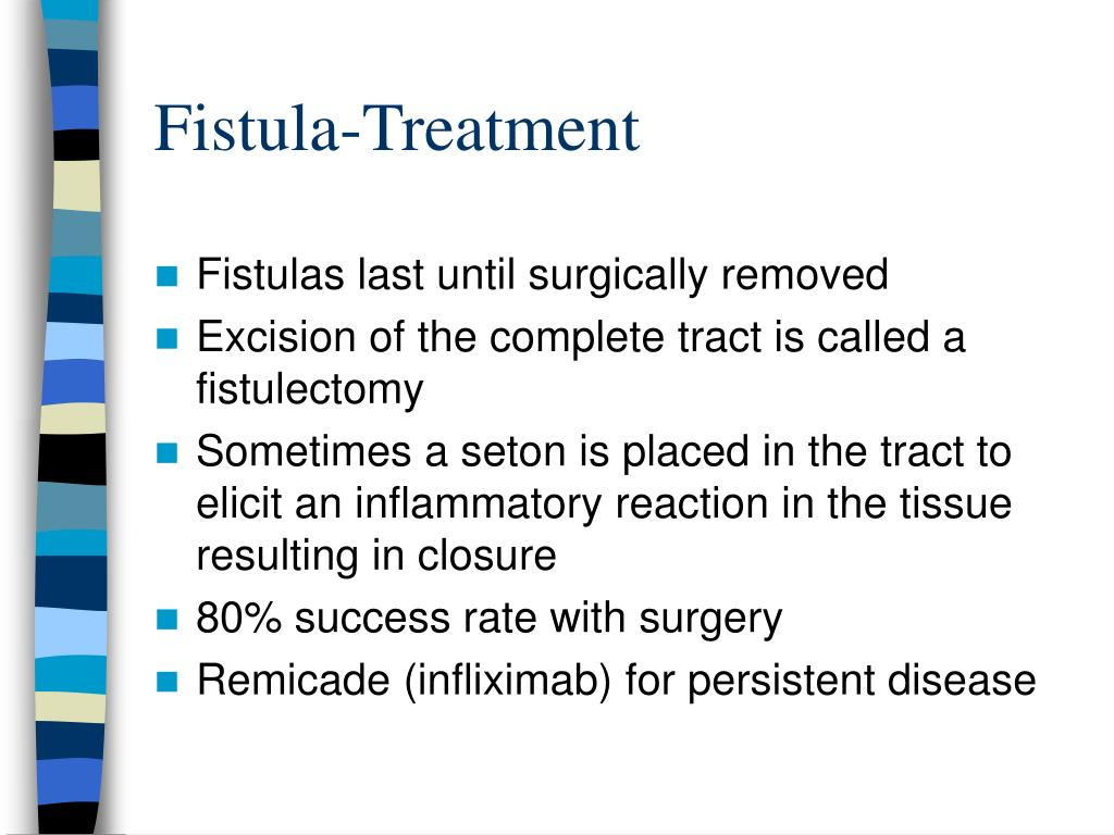 Fistula-Treatment