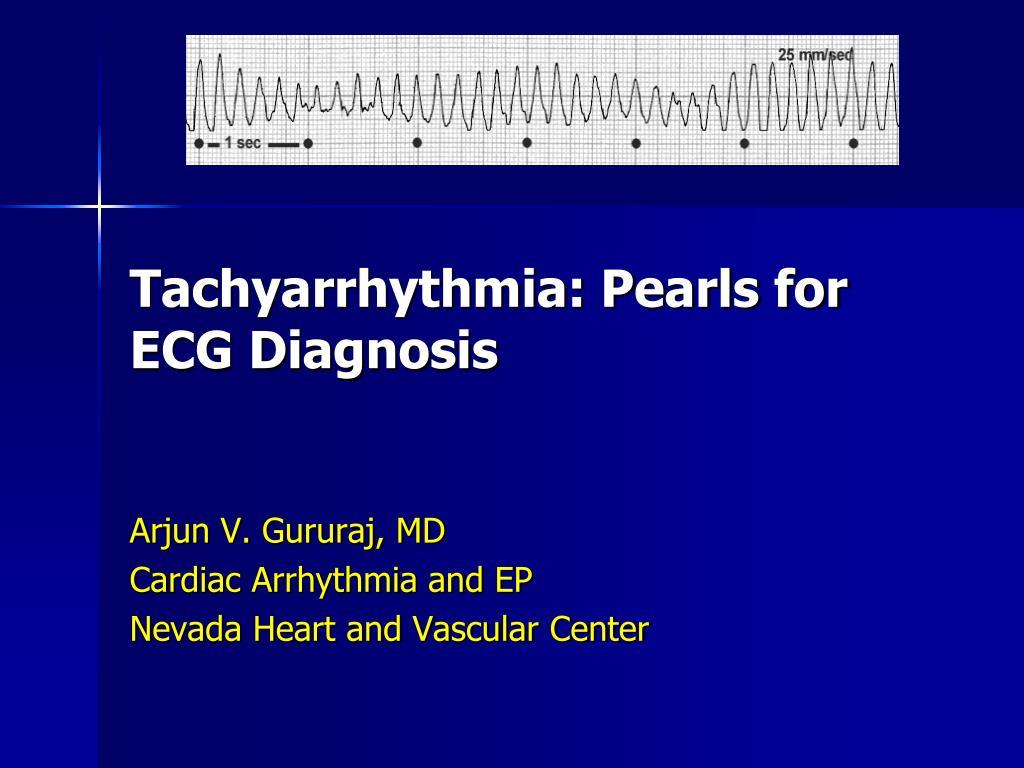 tachyarrhythmia pearls for ecg diagnosis l.