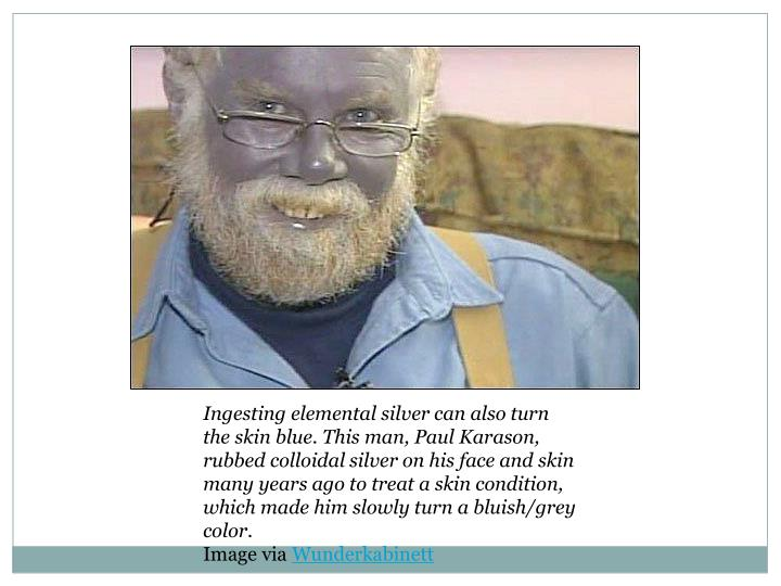 Ingesting elemental silver can also turn the skin blue. This man, Paul