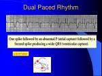 dual paced rhythm