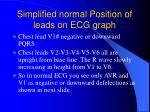 simplified normal position of leads on ecg graph1