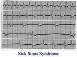 sick sinus syndrome27