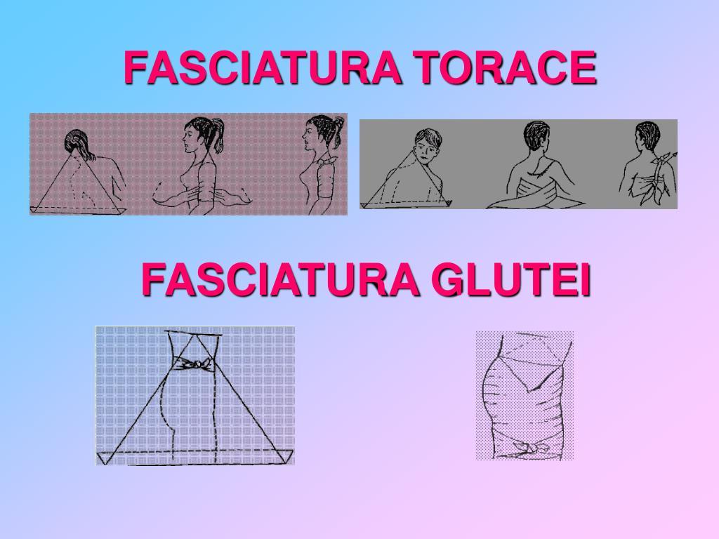 FASCIATURA TORACE