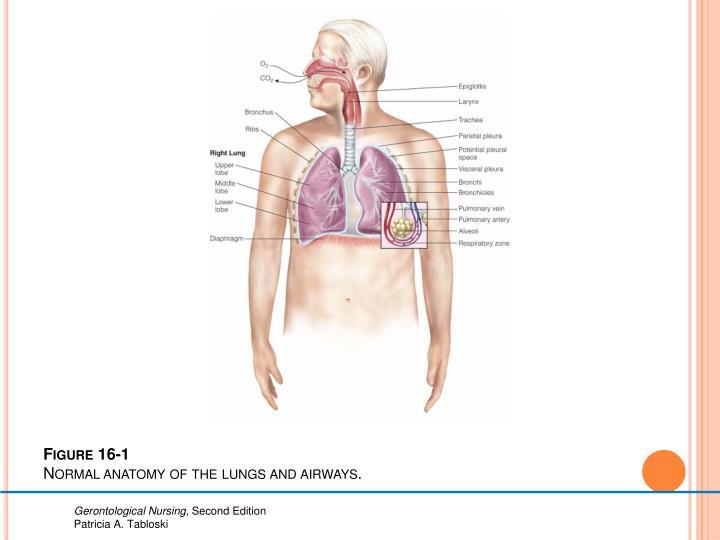 Figure 16-1