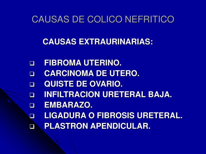 CAUSAS DE COLICO NEFRITICO