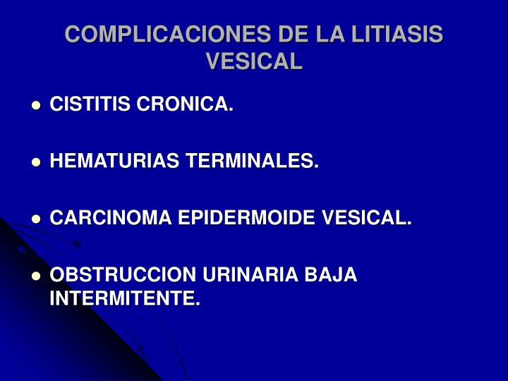 COMPLICACIONES DE LA LITIASIS VESICAL