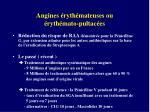 angines ryth mateuses ou ryth mato pultac es2