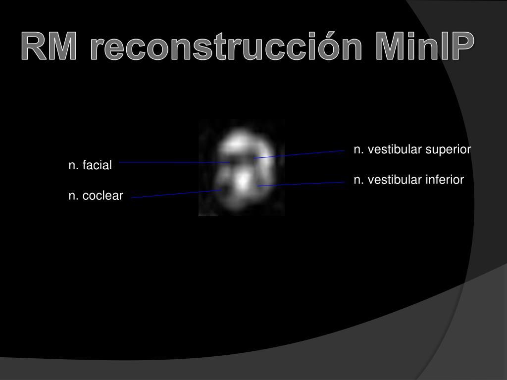 RM reconstrucción