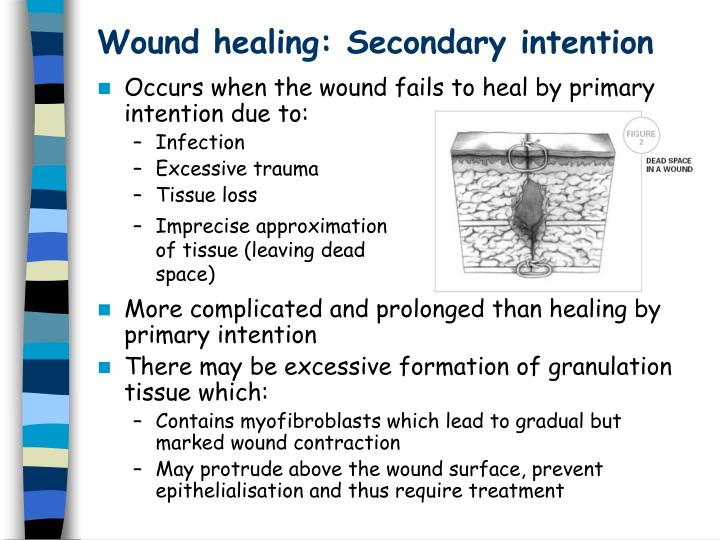primary and secondary healing