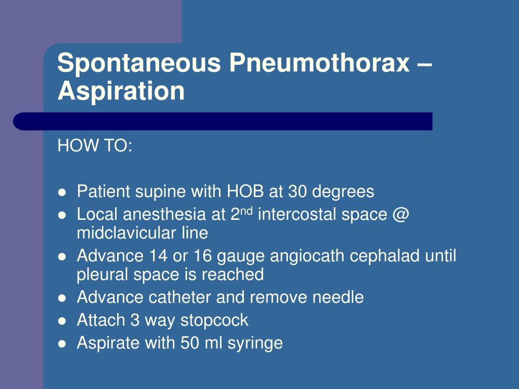 Spontaneous Pneumothorax – Aspiration