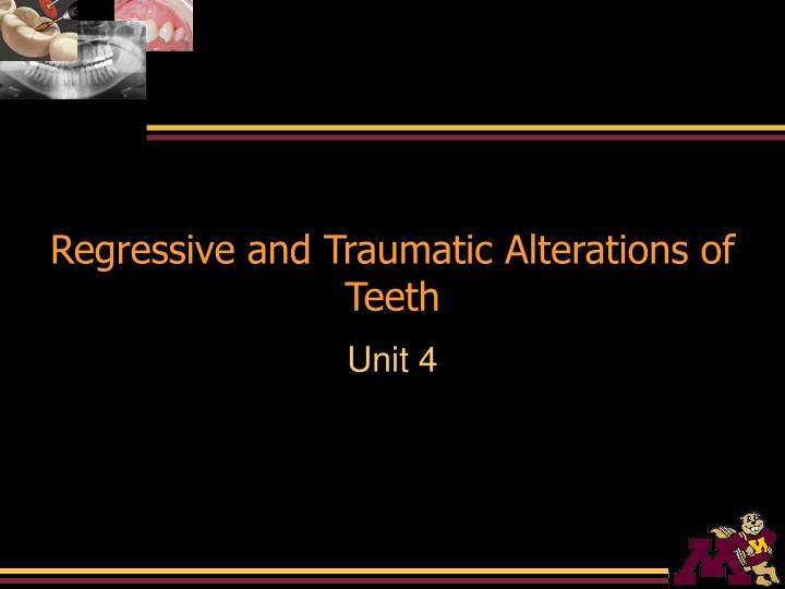 regressive and traumatic alterations of teeth n.
